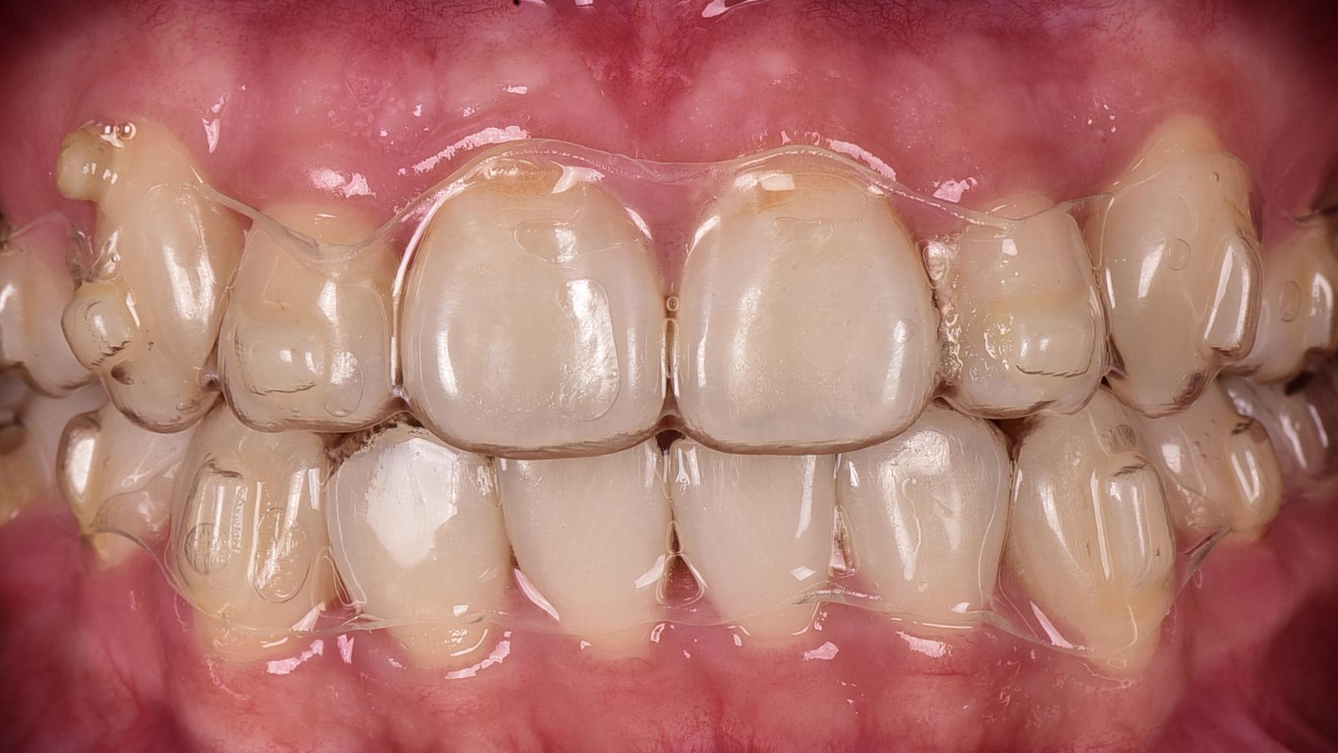 桃園牙齒隱形矯正