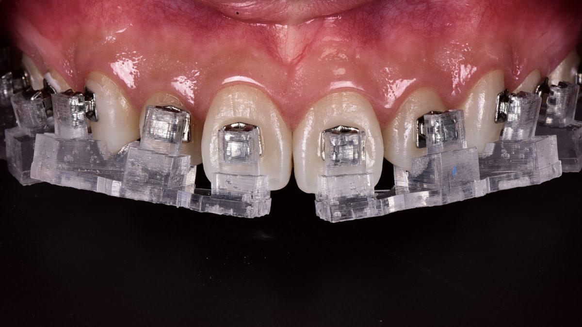 桃園客製化牙齒矯正