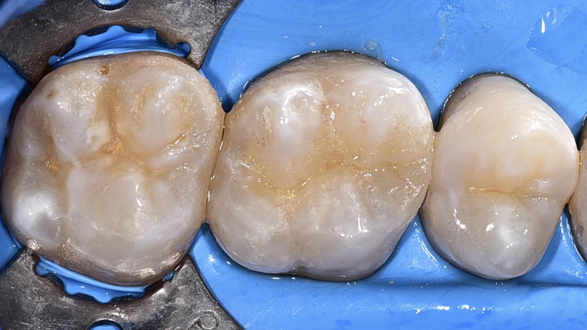 桃園牙醫治療:微創黏著