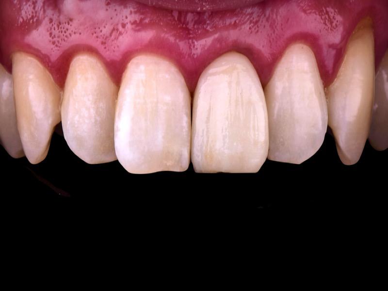 桃園牙醫治療:全瓷牙冠