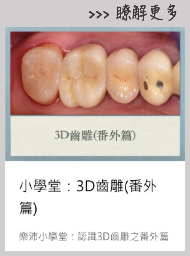 3D齒雕介紹