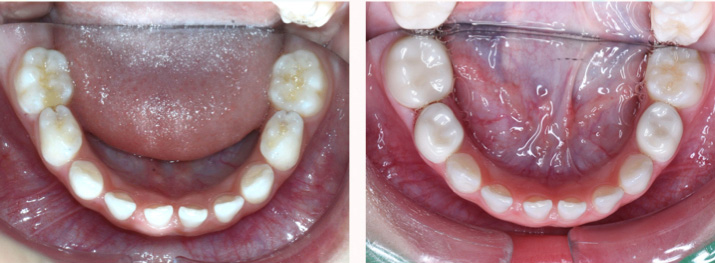 乳牙後牙全瓷牙冠