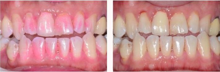牙菌斑顯示劑